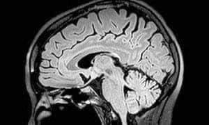 मस्तिष्क स्वयं की मौत को नहीं समझता
